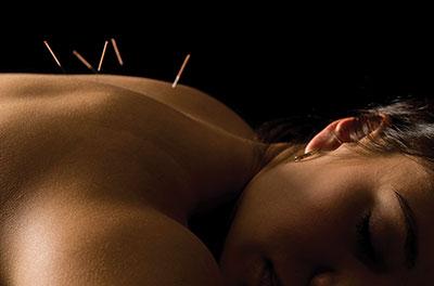 Akupunktur på Hästar
